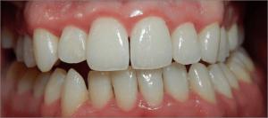 La inflamación y aspecto brillante de la encía es una característica de la gingivitis.