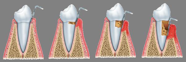 La periodontitis crea bolsas de sarro y placa con bacterias que recubren el diente dañándole. En su diagnóstico se utiliza una sonda para medir la profundidad de la infección