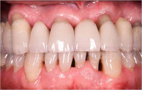La periodontitis causa la retracción de la encía inflamada exponiendo la raíz del diente.