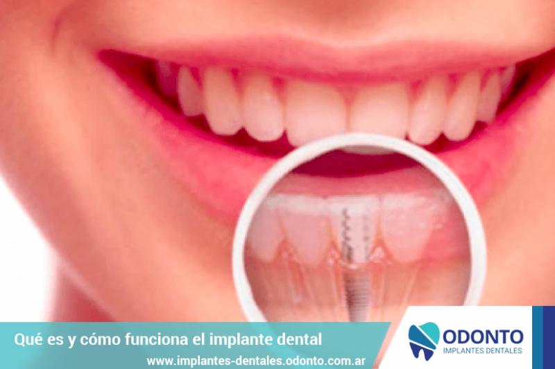 Que es y como funciona un implante dental.