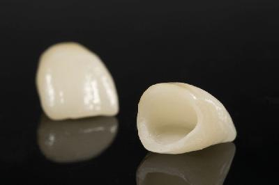 coronas-dentales-porcelana