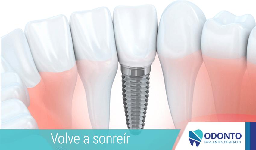 ¿Cuándo ponerte un implante dental?
