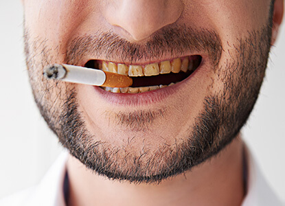 fumar-dientes