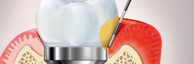 En la mucositis, la placa se acumula en la corona del implante y produce la inflamación de la encía