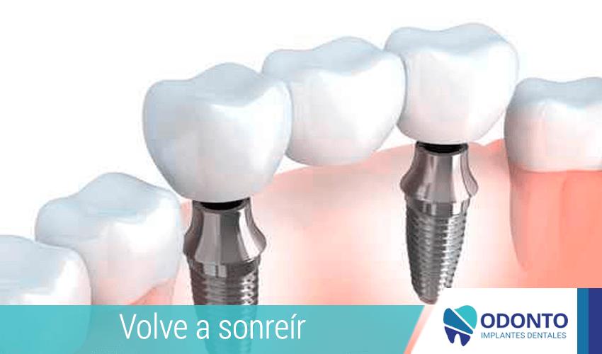 Los puentes protésicos frente a los implantes dentales