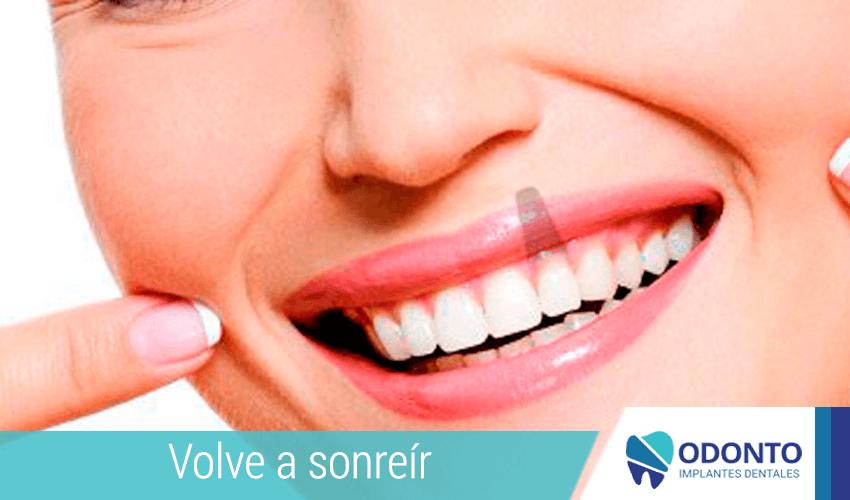 Las 8 verdades de los implantes dentales