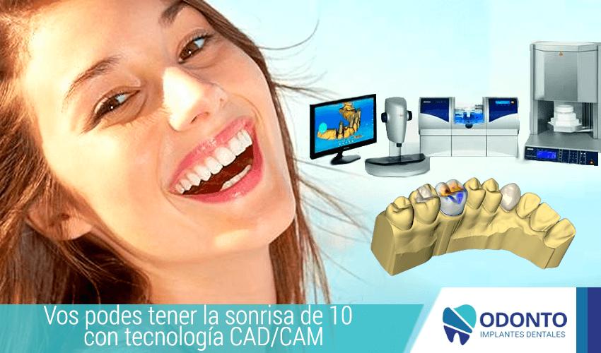 Diseño de sonrisas con tecnología CAD/CAM