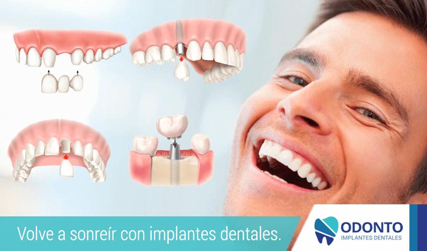 Volve a sonreír con implantes dentales.