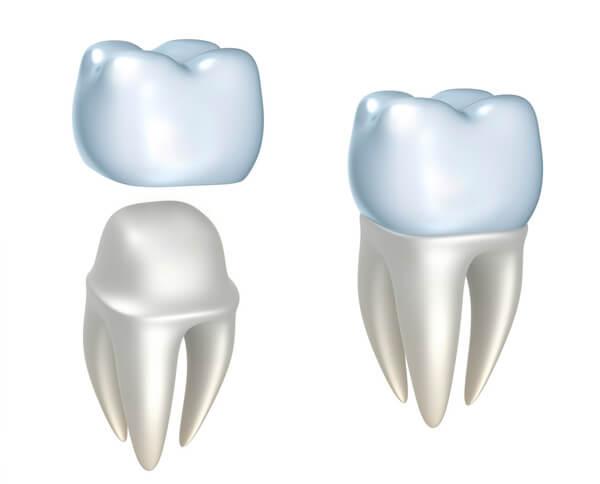 corona dental 2