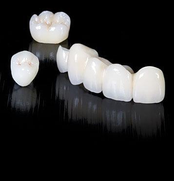 corona dental 4