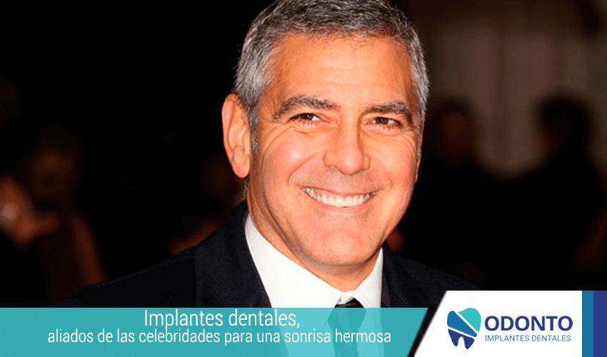 Implante-dental,-aliados-de-las-celebridades-para-una-sonrisa-hermosa