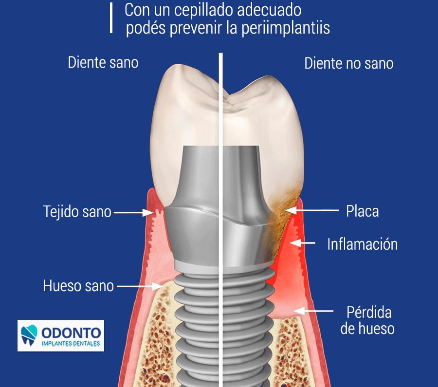 diente-odonto-blog-principal (1) (1)