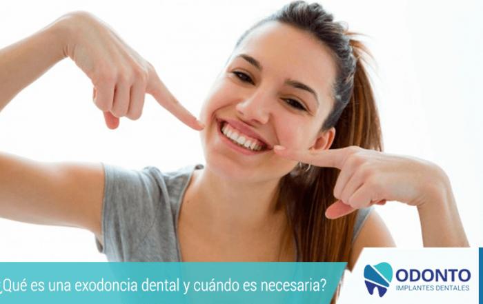 ¿Qué es una exodoncia dental y cuándo es necesaria?