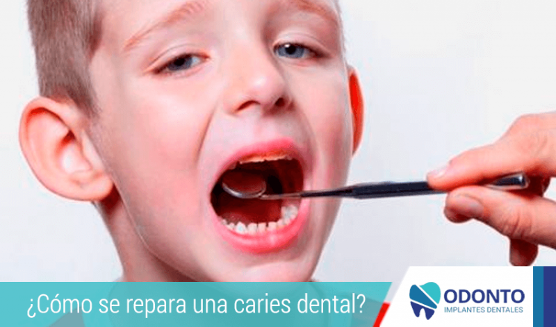 ¿Cómo se repara una caries dental?